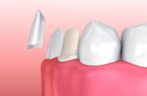 Dental Venners at Dundas West Family and Cosmetic Dentistry in Etobicoke
